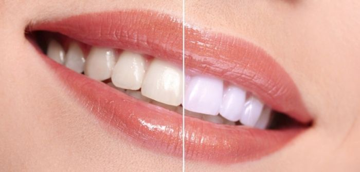 DIY Teeth Whitening Trends That Are Not Getting Results!