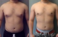 The Rise of Male Breast Reduction Surgery